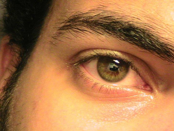 ardalan-eye