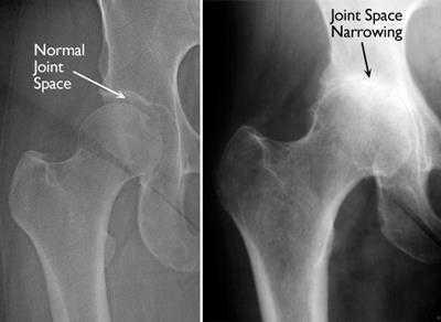 Billedet viser røntgen af en normal hofte og en hofte med slidgigt - fra orthoinfo.aaos.com