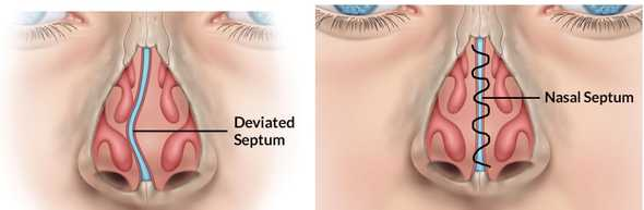 septoplasty-turbinoplasty s4