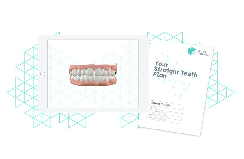 Straight Teeth Plan and 3D Smile Simulation