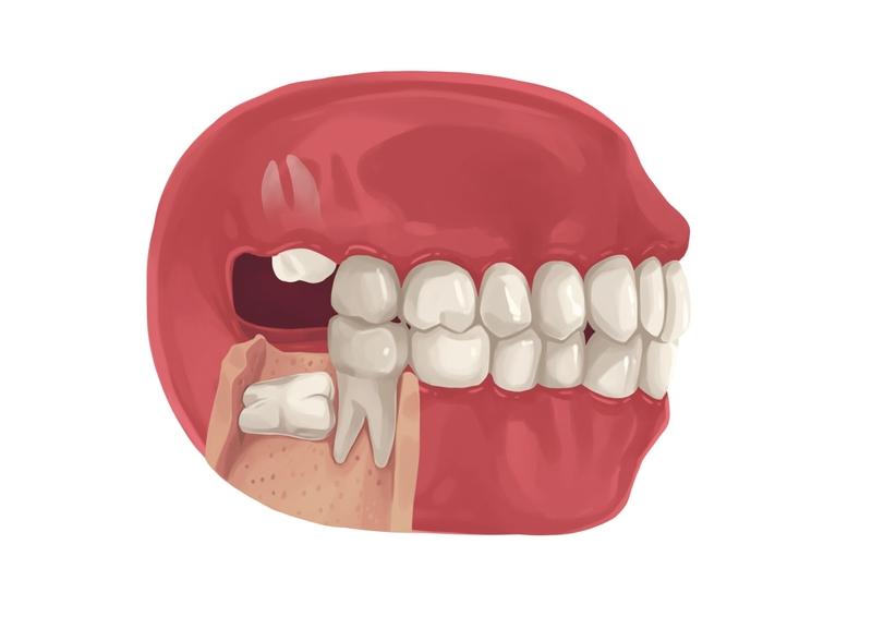 Fully bony wisdomm tooth