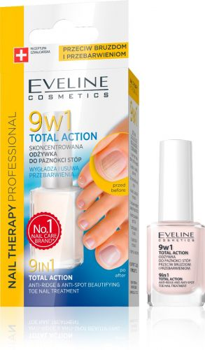 EVELINE NAIL THERAPY 9IN1 TOTAL ACTION lábköröm ápoló