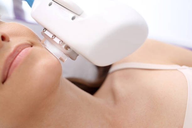 ipl machine treating skin