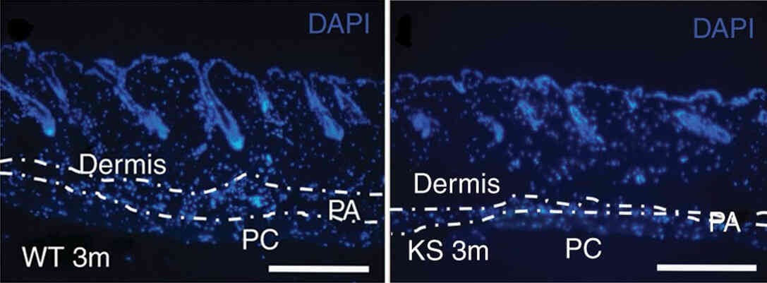 Kallistatin affects skin structure and function.
