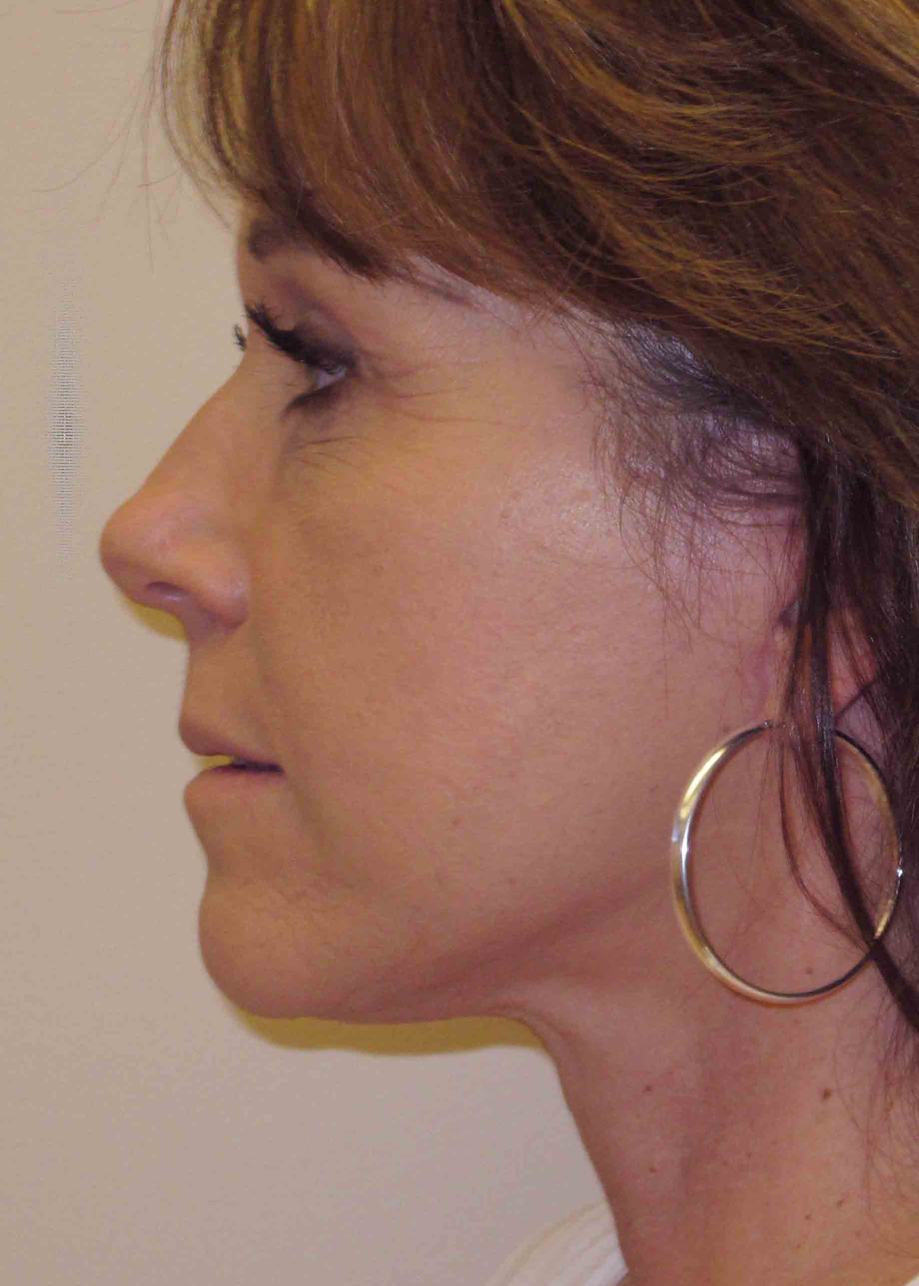 14172-4-post-profile-facelift.JPG