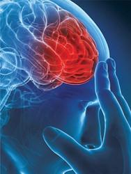 AVC (accidentul vascular cerebral) – tipuri, cauze, simptome, tratament