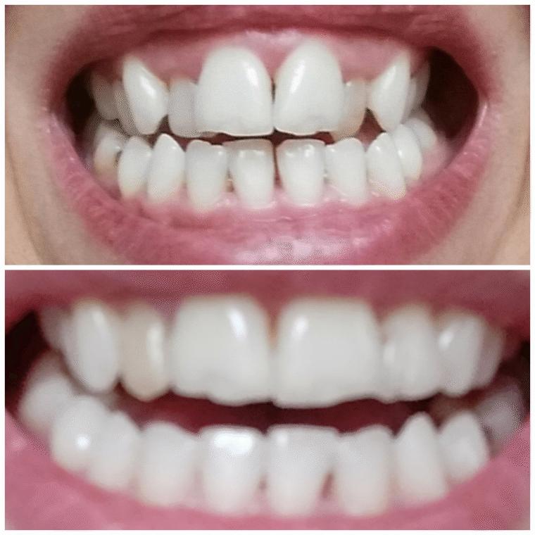 Marta's smile transformation