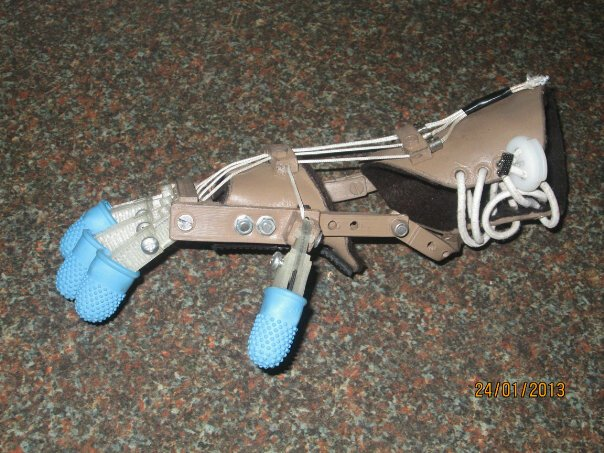 A child's prosthetic hand, made from lightweight plastic parts, with finger digits and a fully integrated structure for movement