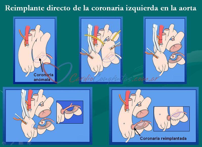 Coronaria-reimplantada