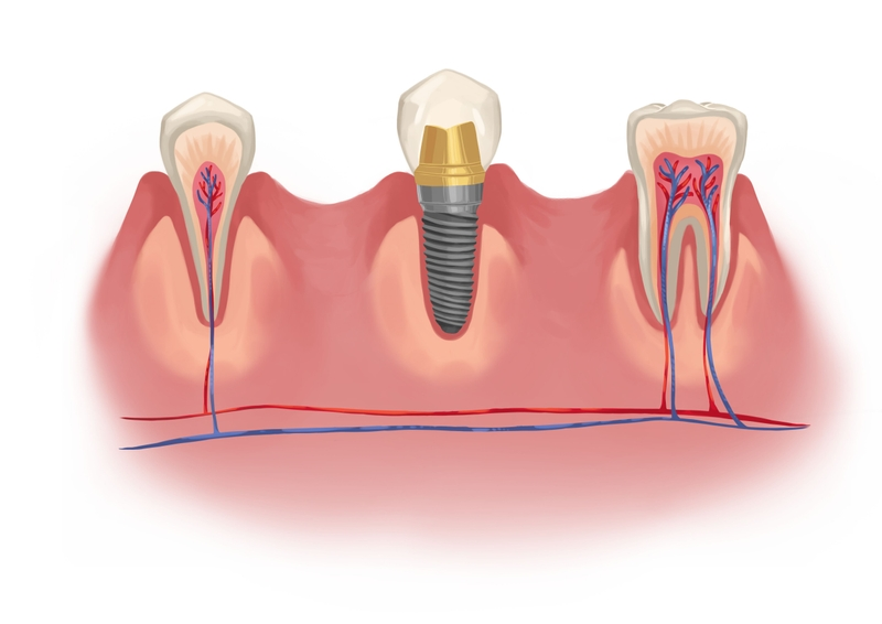Implant between natural dentition