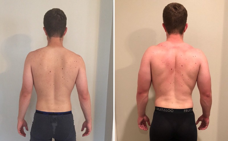 Before and after of my back