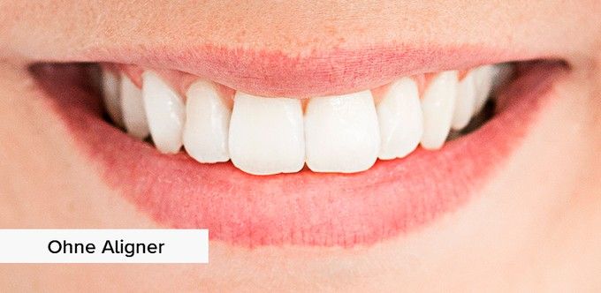 without-aligners UK