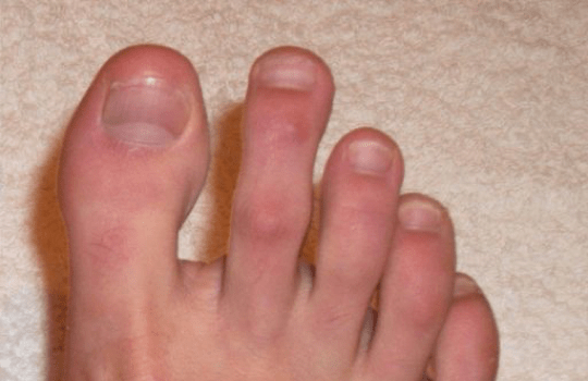 After Nail Mycosis Solution