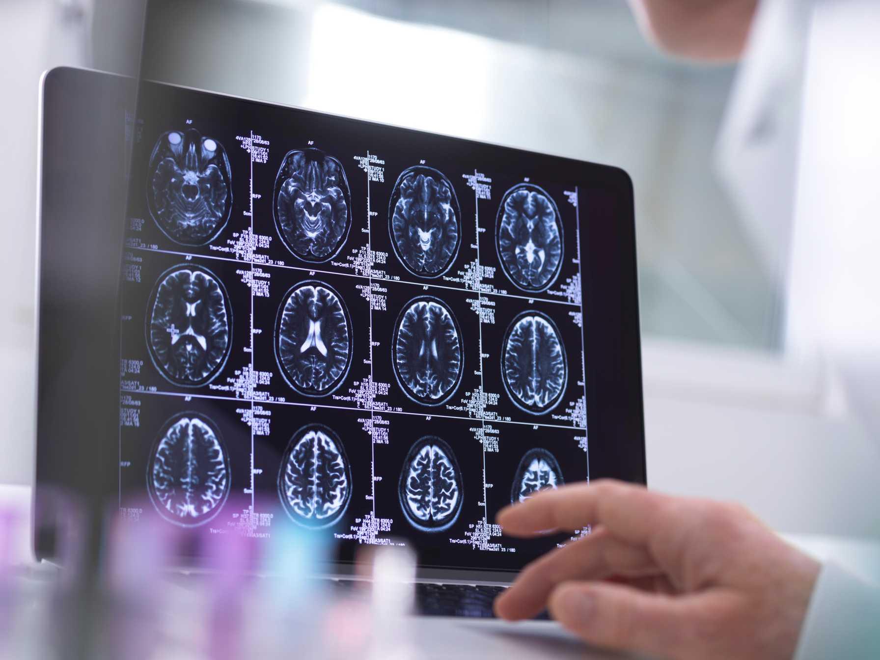 Montefiore-Einstein Neurosciences ranked top 10 nationally in NIH research funding