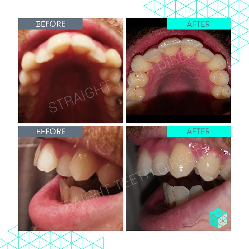 Straight Teeth Direct Review by Gary
