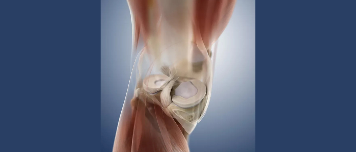 What is the difference between CARTILAGE and MENISCUS?