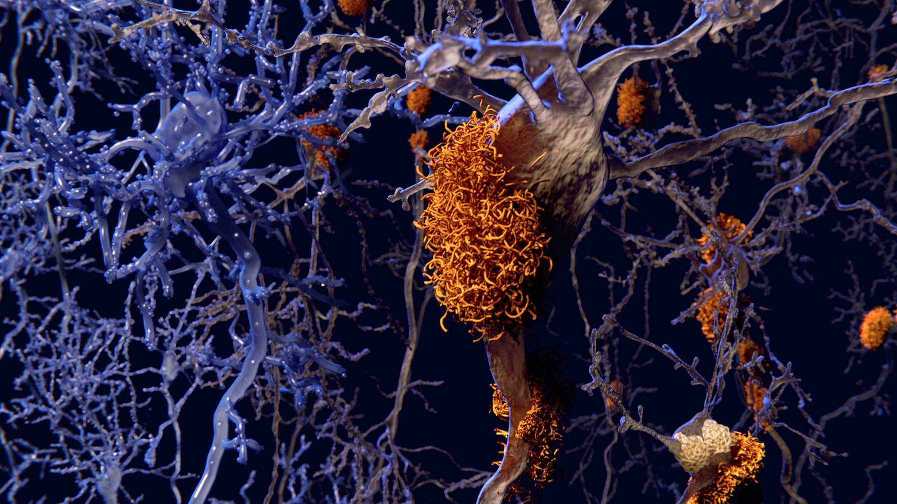 Immunotherapy Treatment May Help Prevent Alzheimer's Disease