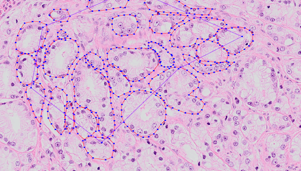 Example of annotated training data. Many of these regions were annotated by hand. The annotated epithelial glands are outlined in red.