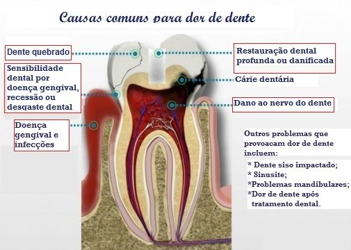 causas dor de dente