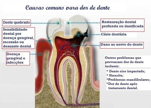 causas dor de dente