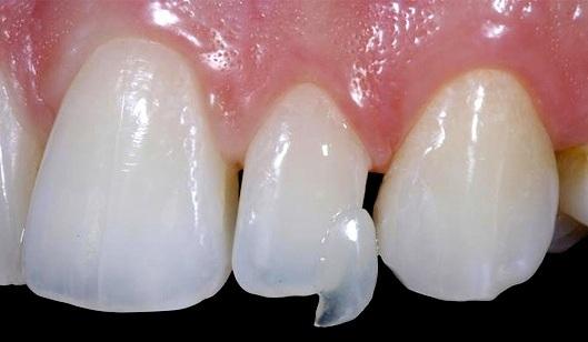lente de contato dentista