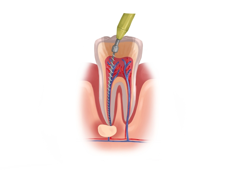 Root canal first treatment