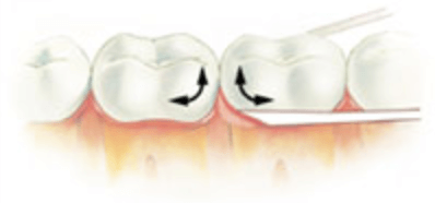 como passar o fio dental