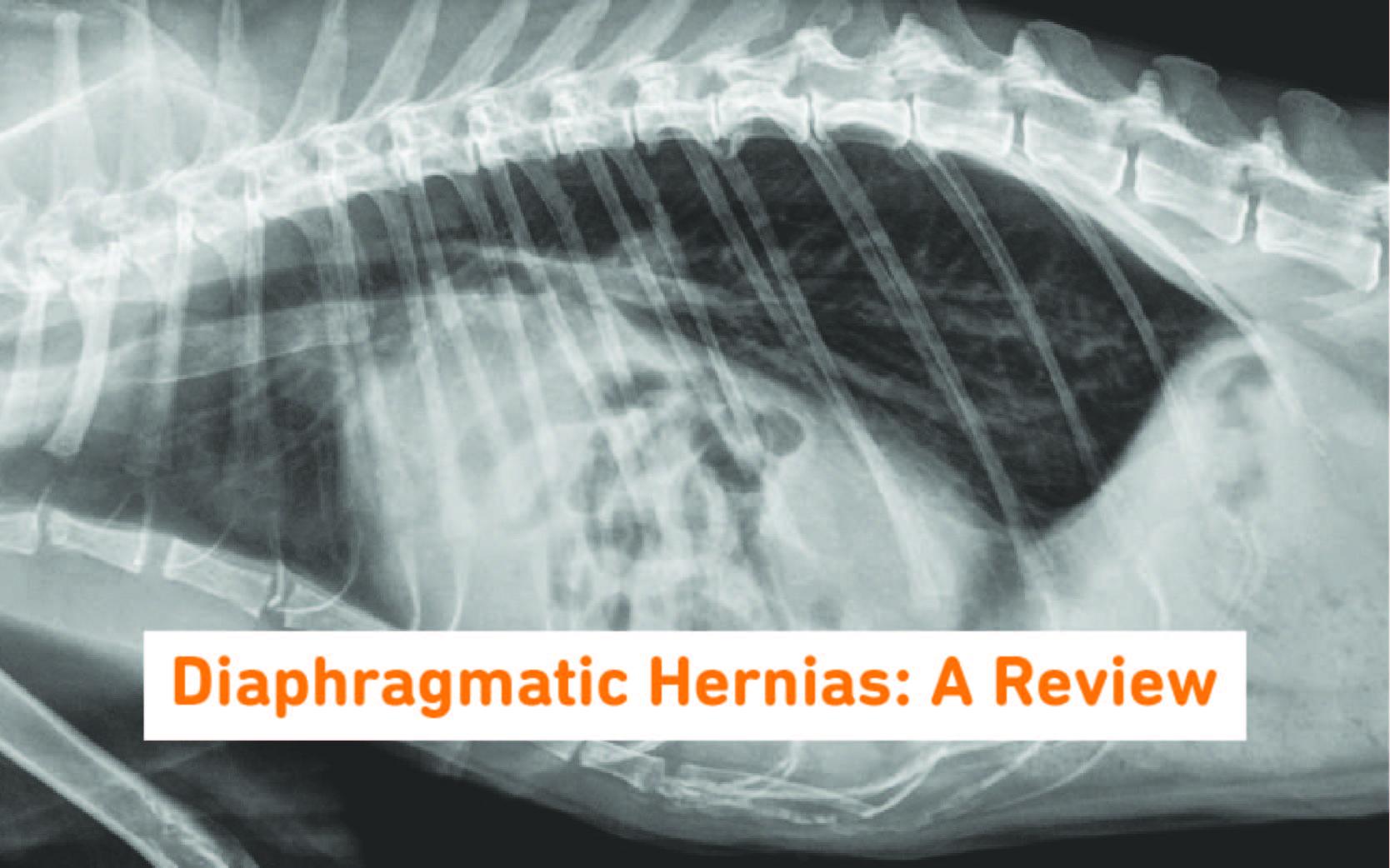 Diaphragmatic hernia review main image