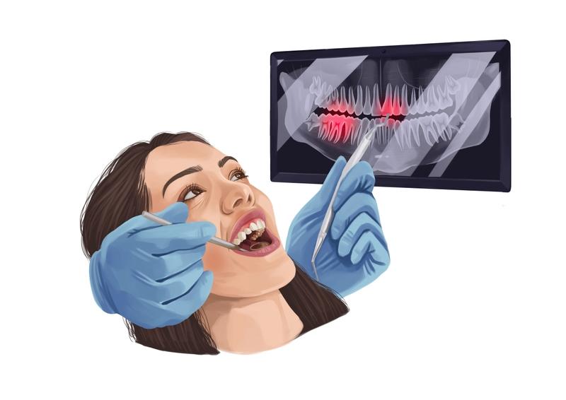 Limited dental exam