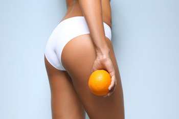 Cellulite Mesotherapy