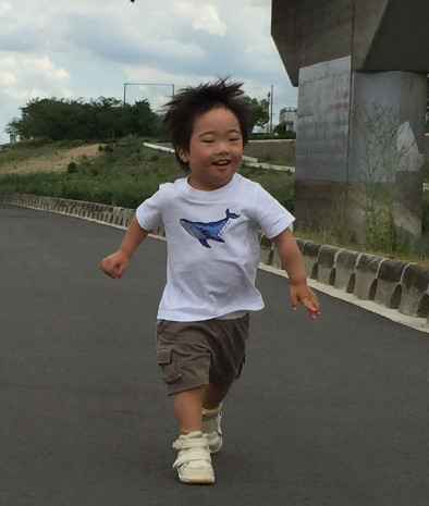 down-syndrome-child-excellent-stamina