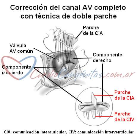 Cirugia-canal-compl