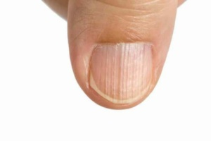 Ridged Nails