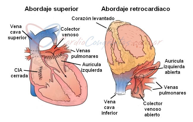 Tecnicas-quirurgicas