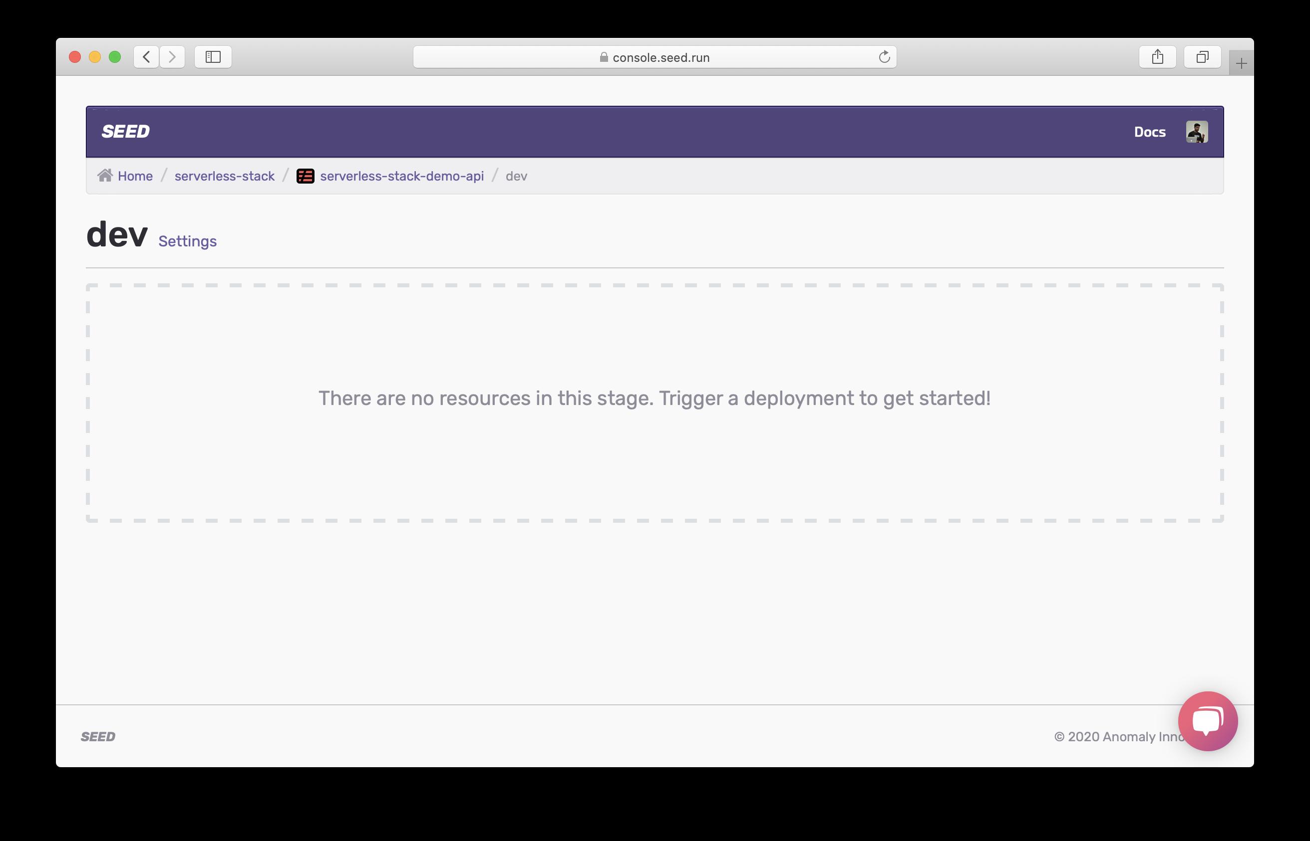 Seed 프로젝트의 개발 stage 화면