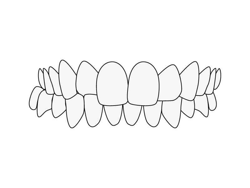 Zahnfehlstellung Kreuzbiss