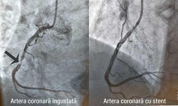 Angioplastia - când este recomandată?
