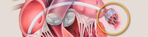 Procedura Watchman pentru Fibrilatie Atriala | Centrele Ares | Inovatie in Cardiologie