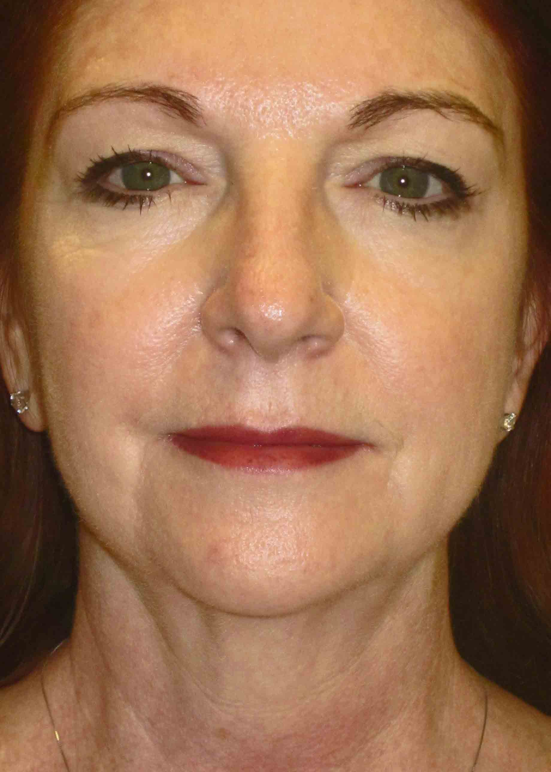 12230-3-preop-facelift-frontal.jpg