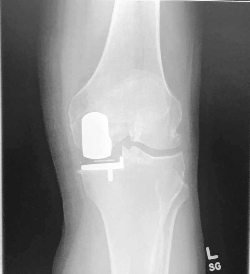 Ενδεικτική ακτινογραφία επιτυχημένης μονοδιαμερισματικής αρθροπλαστικής γόνατος.