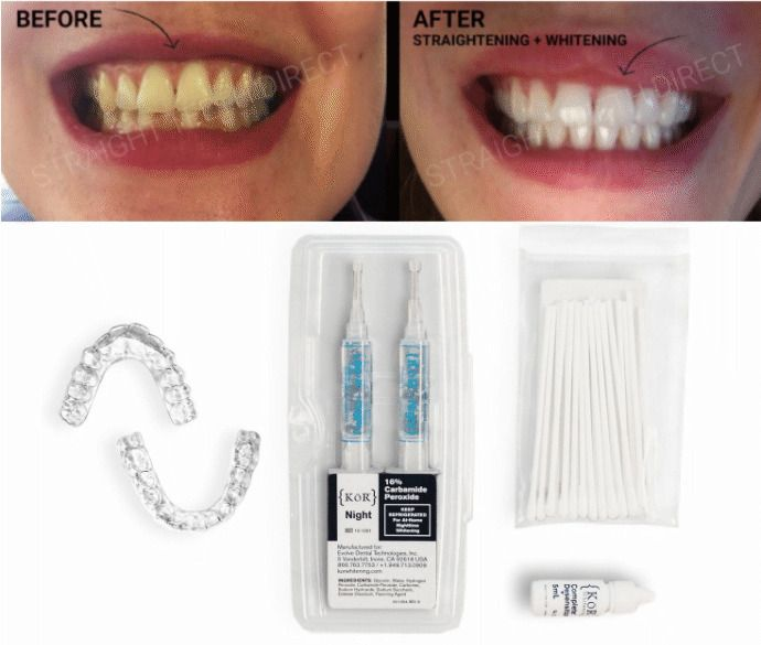Before and after comparision of teeth getting whiter