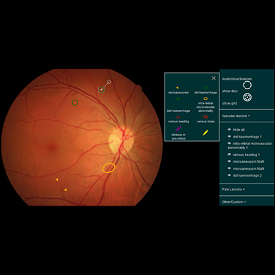 A screenshot of the CREDIS - Fundus lesion annotation tool