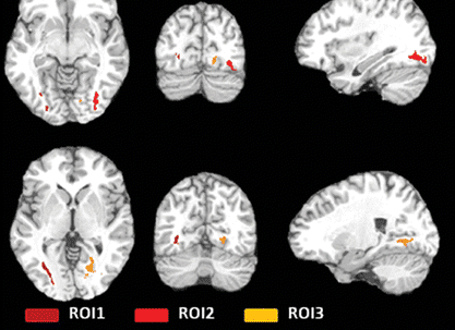 Soccer Heading Is Associated with White Matter Microstructural and Cognitive Abnormalities
