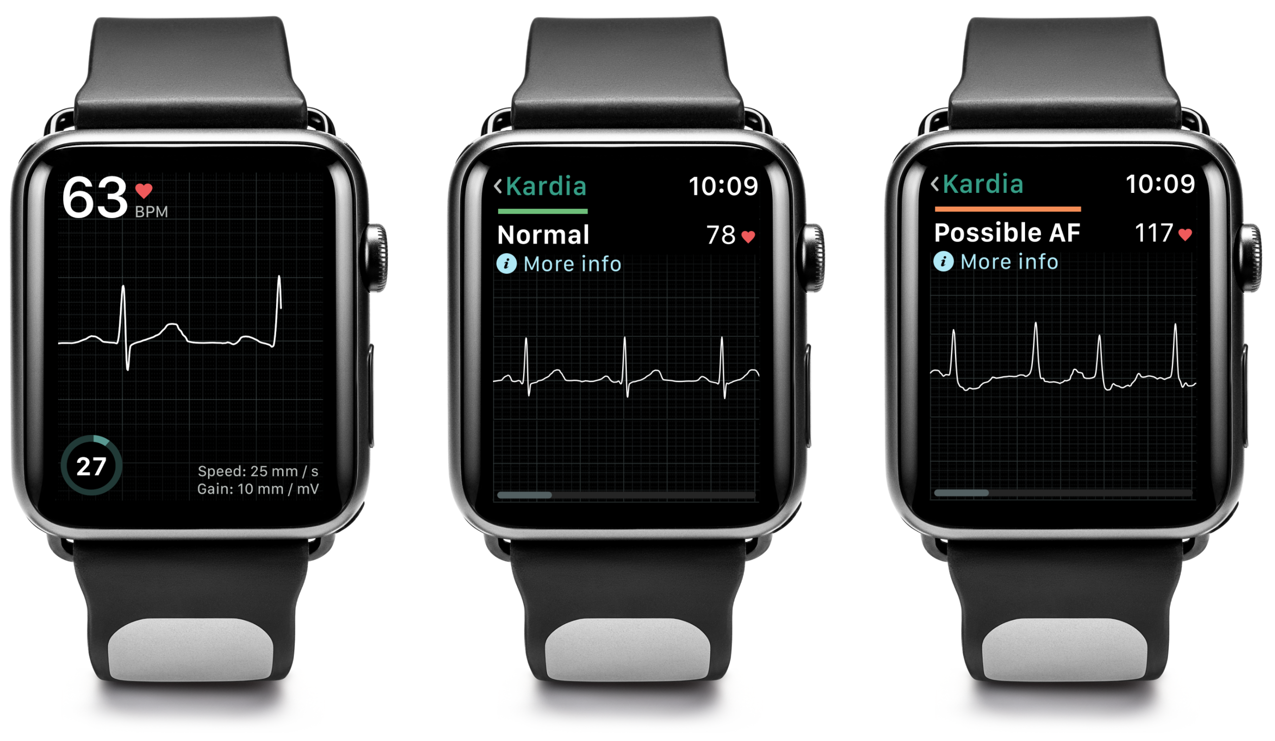 Three watch faces showing an ECG recording, a normal sinus rhythm, and possible atrial fibrillation