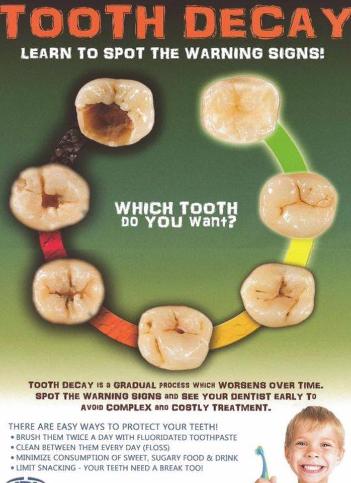 tooth-decay-poster.JPG