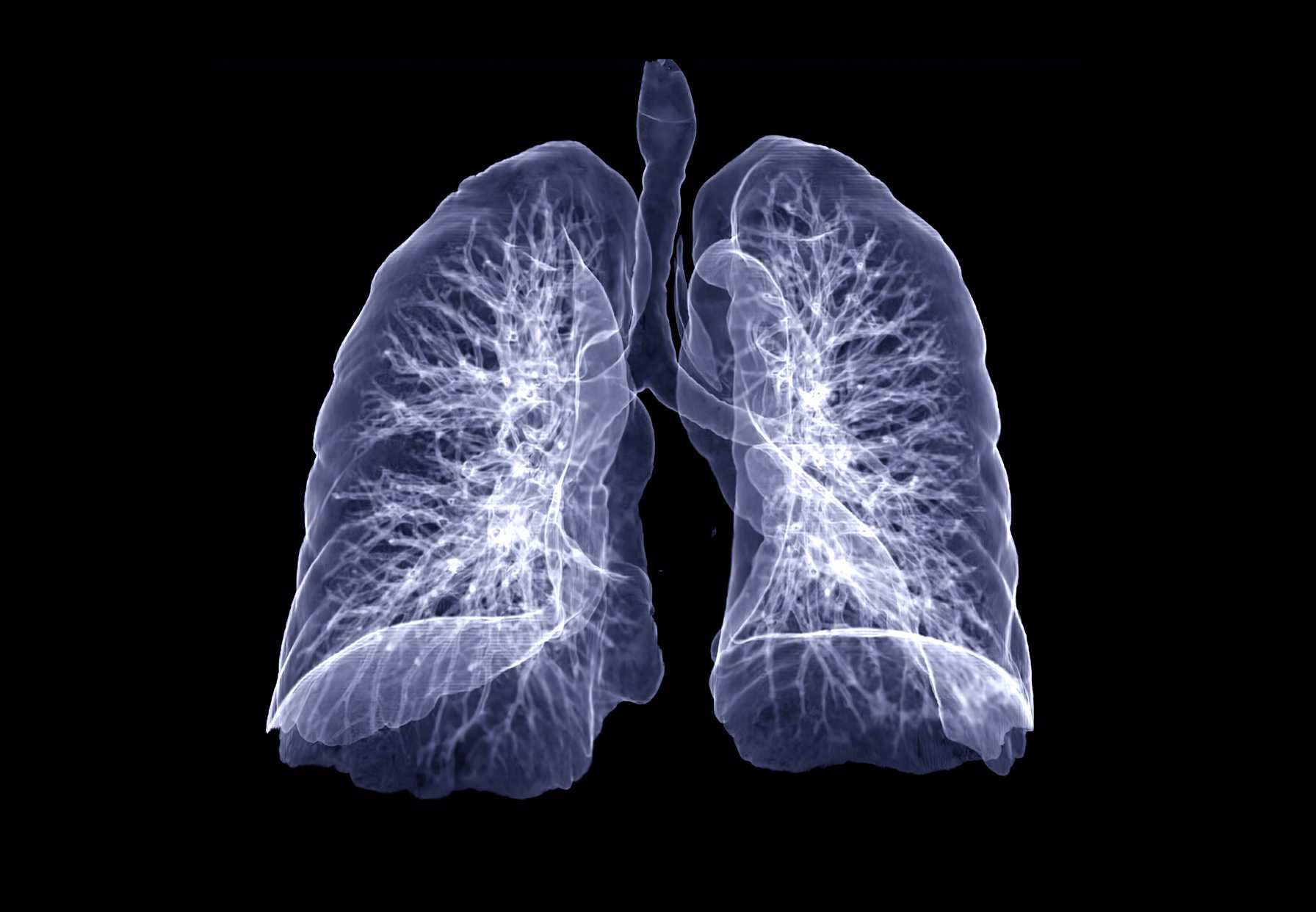 Diagnostic Evaluation of Pulmonary Embolism During the COVID-19 Pandemic