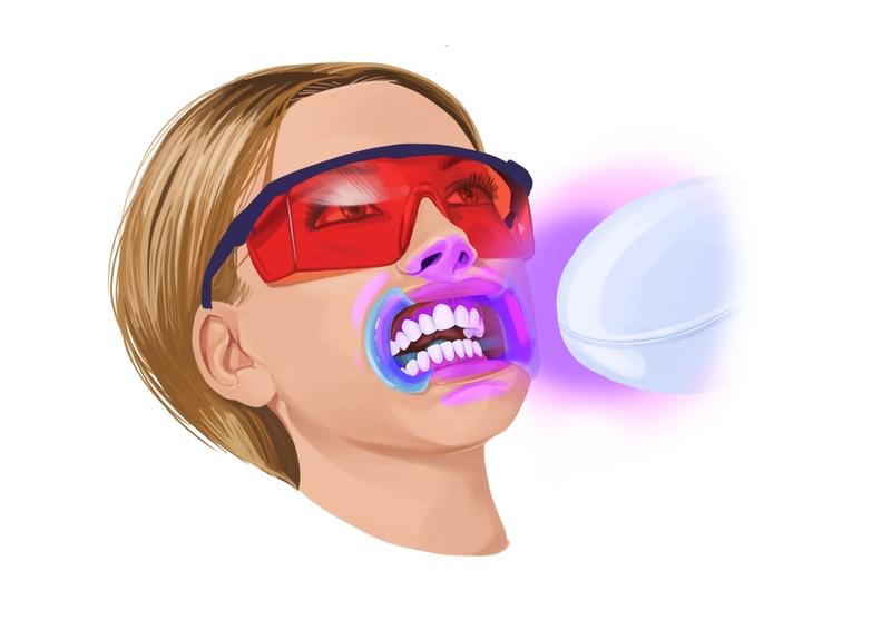 In-office external teeth whitening