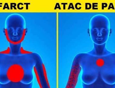 Curiozitati despre cum corpul tau te avertizeaza, Semne ca vei avea un infarct miocrardic