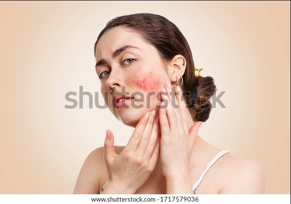Rosacea: Overview, Symptoms and Treatment
